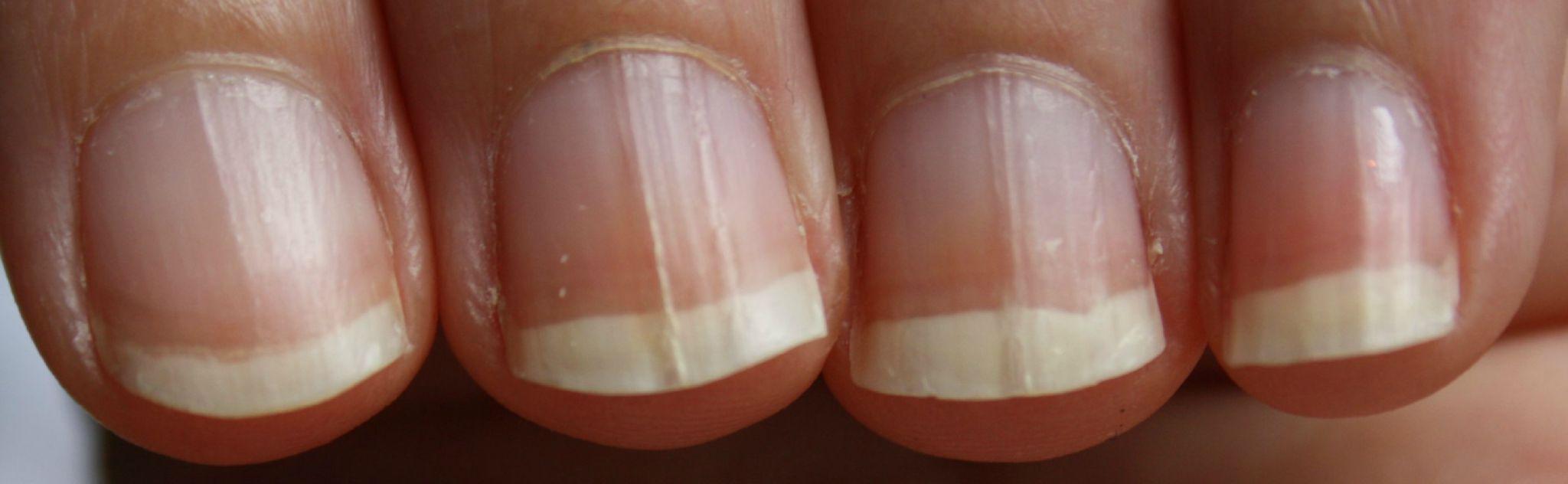 Attention ongles nus photos choquantes bifidus inactif - Comment bien se couper les ongles des mains ...