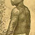 Siparis un des survivant de l'Eruption de la Montagne Pelée 8 mai 1902