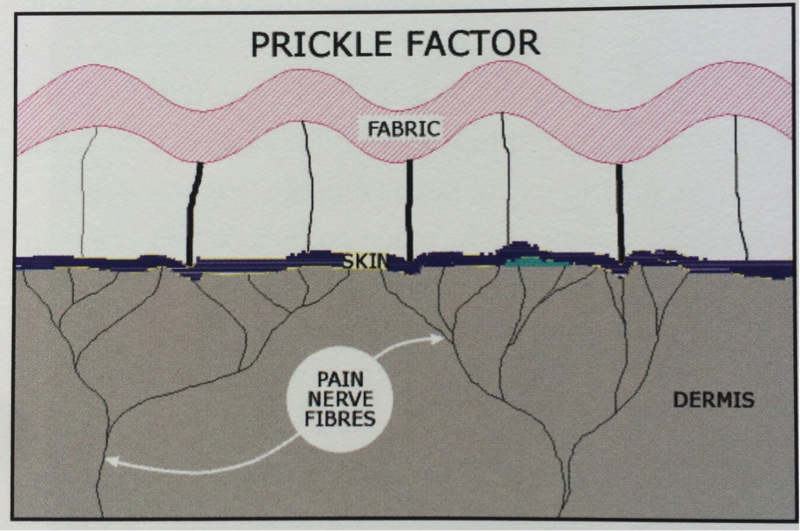 prickle factor