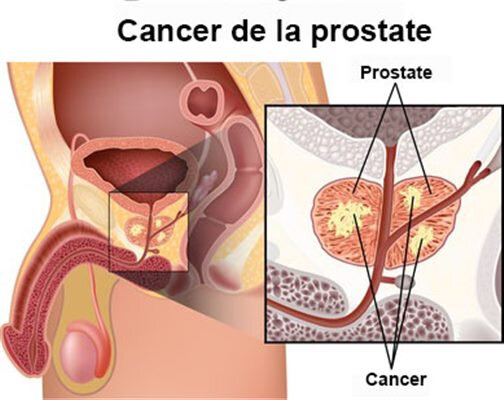 traitement-efficace-du-cancer-de-la-prostate