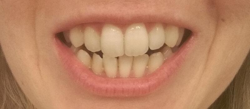 sourire mai 2018