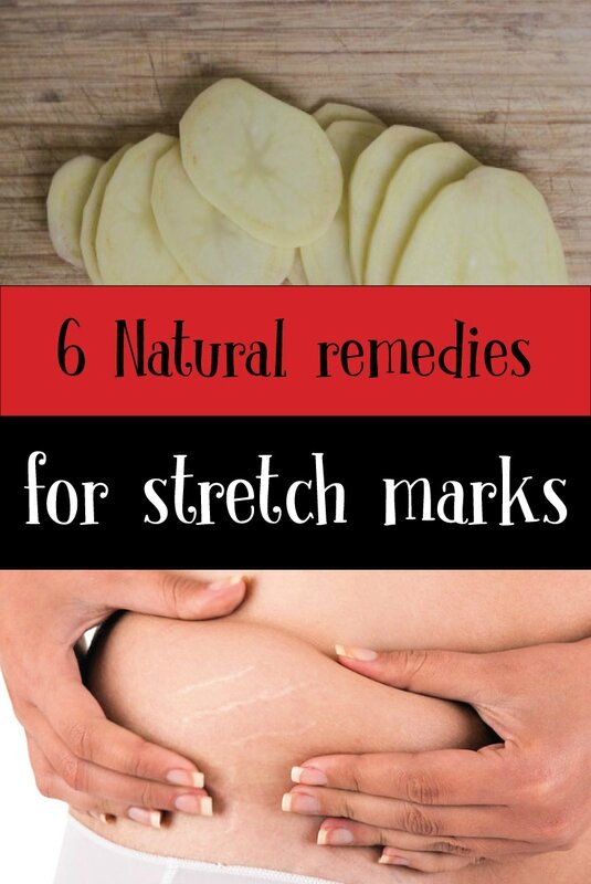 6-Natural-remedies-for-stretch-marks