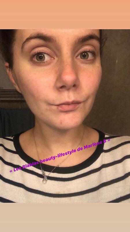 ma peau démaquillée et propre et avant l'utilisation du masque visage Miel et Curcuma magique (effet peau neuve)