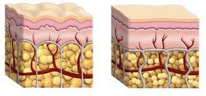 shemat de coupe peau cellulite