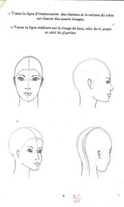 implantations